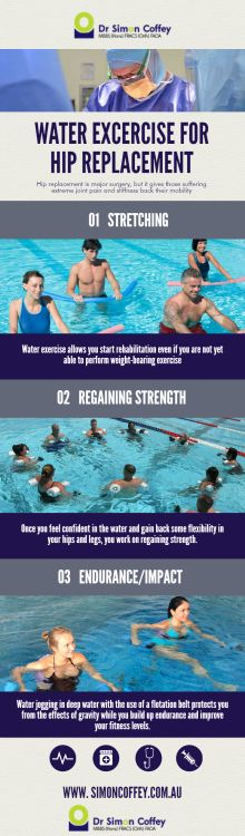 3 Best Water Excercise For Hip Replacement Surgery Patients hip_replacement,total_hip_replacement Hip Replacement Exercises, Hip Replacement Recovery, Joint Replacement, Pool Workout, Aerobics Workout, Hip Workout, Bursitis Hip, Hip Dysplasia, Water Aerobics
