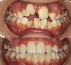 Actual patient of Impressions orthodontics, Phase 1 treatment to create space and align teeth
