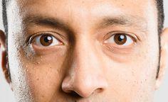 A anatomia dos olhos   Guia de Óculos