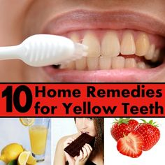 Top 10 Home Remedies For Yellow Teeth #top10 #homeremedies #yellowteeth