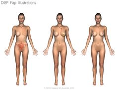 DIEP breast reconstruction illustration. Fat and skin from the abdomen is used to reconstruct a new breast after a mastectomy following breast cancer treatment.