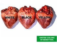 """This photo is another example of """"Shock Advertisement"""", it shows that though people have different skin colors, we all have the same hearts. It's meant to unite people."""