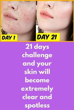 21 days challenge and your skin will become extremely clear and spotless Learn how to get rid of acne, acne marks and pimples. how to get rid of acne fast, remove pimples and remove pimples marks, remove acne marks from face, remove acne spots. This remedy contains all the ingredients easily avaliable at your kitchen. Turmeric powder is famous to heal acne and acne marks, it also …
