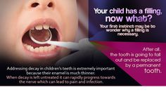Athens Oconee Dentistry offers safe, gentle fillings that restores your child's teeth & improve their oral health.#ChildrensDentistryAthens