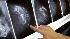 #Got Dense Breasts? That Can Depend On Who Is Reading The Mammogram - NPR: NPR Got Dense Breasts? That Can Depend On Who Is Reading The…