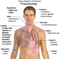 What Are the Symptoms of Pneumonia?  You mainly get the disease from inhaling dirty air that contains the bacteria or virus that brings Pneumonia. When you incur the disease, you will begin to experience more cough attacks over the days.