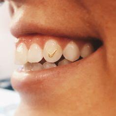 This tooth tic gems are solid 22 Gold similar to a nike swoosh. Girl Grillz, Cute Jewelry, Women Jewelry, Gem Tattoo, Diamond Teeth, Tooth Gem, Teeth Bleaching, White Teeth, Gold Teeth