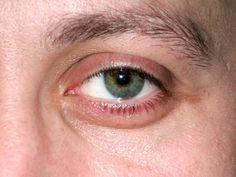 Ocular Signs of Lyme Disease Rheumatoid Arthritis Symptoms, Ulcerative Colitis, Lyme Disease, Autoimmune Disease, Parts Of The Eye, Eyes Problems, Abdominal Pain, Puffy Eyes, Thats The Way