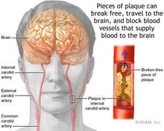 Stroke Symptoms - Stroke Health Information - NY Times Health Transient Ischemic Attack, Internal Carotid Artery, Brain System, Stroke Recovery, Blood Vessels, Medical Conditions, Health, Vascular Disease, Parkinson's Disease