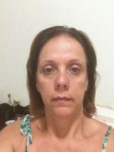 """resultados após 15 dias de uso do produto """" 7 dias de lifting facial que irão mudar a sua vida"""""""
