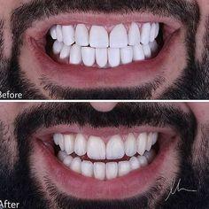 Pin on Стоматология Veneers Teeth, Dental Veneers, Lente Dental, Teeth Makeover, Composite Veneers, Dental Photos, Dental Aesthetics, Dental Photography, Perfect Teeth