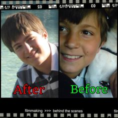 Puberty works for some. Plastic surgery for others