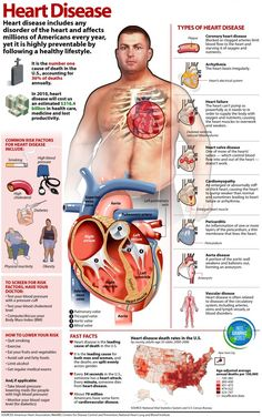 For more facts about heart disease, its different types and its demographic in U.S. check out this infographic: