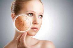 Piel seca, causante de apariencia marchita | Salud y Medicinas