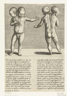 Hendrick Goltzius   Kind met twee hoofden, Hendrick Goltzius, 1579   Kind met twee hoofden, in vooraanzicht en op de rug gezien. Met onderschrift in 2 kolommen in het Nederlands en Frans met meer informatie over dit vreemde natuurverschijnsel.