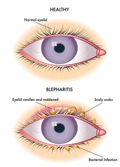 Bacterial eye infections can lead to blepharitis which is the inflammation of the eyelids. Dry Eye Treatment, Natural Treatments, Swollen Eyelid, Eye Infections, Holistic Remedies, Health, Make Up, Eyelashes