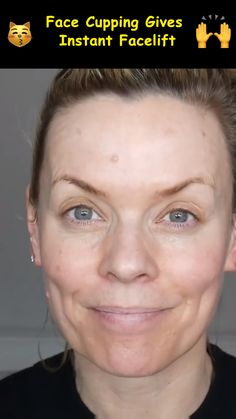 Here's why this ancient beauty technique called Facial Cupping is gaining popularity around the world. Here's why this ancient beauty technique called Facial Cupping is gaining popularity around the world. Acne Scar Removal Treatment, Facial Cupping, Facial Yoga, Facial Massage, Instant Face Lift, Types Of Acne, Facial Exercises, Ancient Beauty, Face Skin Care