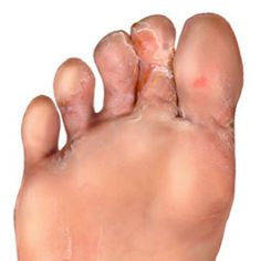 Five Effective Natural Cures for Athlete's Foot
