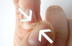 Brüchige Nägel: Gründe und Tipps We talked to nail-care experts to learn exactly what you need to be Shellac Nail Designs, Shellac Nails, Us Nails, Hair And Nails, Nail Polish, Diy Beauty, Beauty Hacks, Broken Nails, Brittle Nails