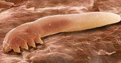 Fantástico! Microrganismo que vive no rosto do ser humano acumula toxinas até a morte - # #ácarosnapele