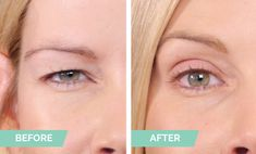 Contours Rx | Order Saggy Eyelids, Dry Eyelids, Hooded Eyelids, Droopy Eyes, Eyebrow Makeup Tips, Beauty Makeup Tips, Eyelid Lift, Makeup For Older Women, Instant Lifts