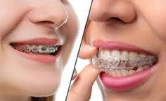 Find the Best Invisalign Dentist Near me at an Affordable price. URBN Dental offers Invisalign treatment and are preferred Invisalign Providers. We offer Invisalign Braces Houston TX. Dentist Near Me, Best Dentist, Teeth Correction, Ranger, Teeth Alignment, Dental Emergency, Teeth Straightening, Dental Problems