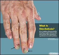 What is Onycholysis?