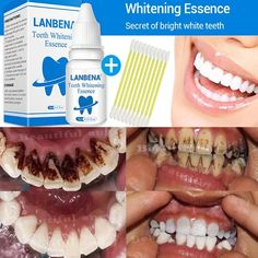 Oral Hygiene Lanbena Teeth Whitening Strips Bamboo Charcoal Oral Hygiene Teeth Veneers White Strips Serum Removes Plaque Stains 7 Pairs Box Refreshing And Beneficial To The Eyes