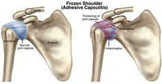 frozen shoulder and yoga