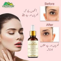 Brightens & illuminates the Eye Reduces Puffiness Brightens Dark Circles Minimize Eye Bags Reduce Wrinkles Minimize Eye Spots Remove Dark Circles Treat Puffiness #ChiltanPure #Treatpuffiness #skincare #ReduceWrinkles Under Eye Bags, Crows Feet, Eye Serum, Dark Circles, Cellulite, Skincare, Sun Light, Pure Products, Eyes