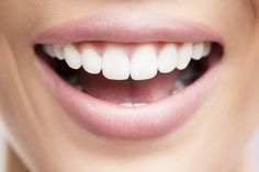 Dental crowns are commonly used in general dentistry, and are utilized in cosmetic dental treatments as well. They play a vital part in dentistry, allowing patients to cover, protect, and restore their smile. Dental Cosmetics, In Cosmetics, Coconut Oil Uses, Benefits Of Coconut Oil, Garlic Benefits, Implant Dentistry, Dental Implants, Get Whiter Teeth, Clean Teeth