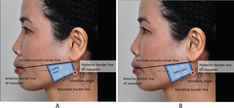 Masseter Hypertrophy: Toxin Treatment Techniques, Causes of Complications, and Prevention Facial Fillers, Botox Fillers, Dermal Fillers, Botox Injection Sites, Botox Injections, Skin Anatomy, Facial Anatomy, Relleno Facial, Botox Face