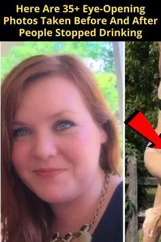 Here Are 35+ Eye-Opening Photos Taken Before And After People Stopped Drinking