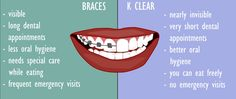 Why Clear Aligners are much better than braces Clear Aligners, Teeth Straightening, Best Oral, Oral Hygiene, Braces, Dental, Eat, Teeth, Suspenders