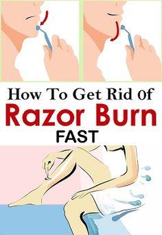 To Get Rid Of Razor Burn Fast