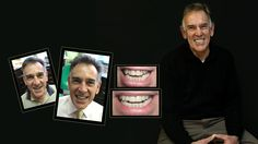 If you're looking for the best dentist Melbourne CBD? We offer General, Restorative and Cosmetic Dentistry General Surgery, Porcelain Veneers, Smile Makeover, Melbourne Cbd, Best Dentist, Something About You, Whitening Kit, Cosmetic Dentistry, Your Smile