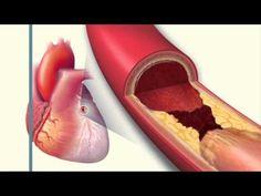Ibuprofen Side Effects