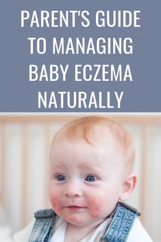 Did you know that there are six types of eczema? Knowing what type of eczema your child has will be tremendously helpful because you can better understand the triggers and the lifestyle changes that will best help keep it under control. Nummular Eczema, Eczema Relief, Eczema Remedies, Itchy Rash, Skin Specialist, What Type, Natural Baby, Free Baby Stuff