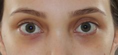 Under Eye Dark Circles. Click through for recommendations on treating them.