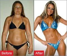 Weight Loss Before and After - Weight Loss Success Stories Weight Loss Program, Easy Weight Loss, Healthy Weight Loss, Before After Weight Loss, Before And After Weightloss, Reduce Weight, How To Lose Weight Fast, Fitness Before And After Pictures, Beach Bodys