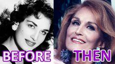 WOMAN and TIME: DALIDA