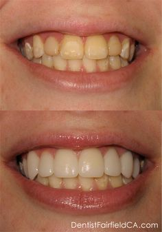 Results from Mark Warner DDS - Before & After: With porcelain veneers, bonding and teeth whitening available cosmetic dentistry is virtually limitless.