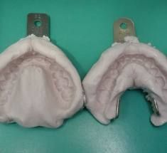 What To Expect When You Are Getting Dentures-Information From Start to Finish   (With A Little Added Humor)