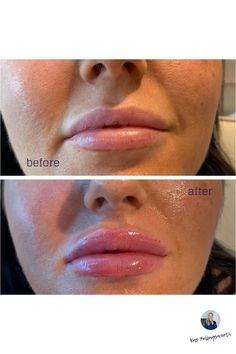 If you are you interested in cosmetic injections, then we can help 💁🏻 Phone ☎️ 03 8768 5000 or email kas@timbrown.com.au for appointment.    #lipaugmentation #cosmeticinjections #dermalfillers #lips #designerlips #melbourne #lipporn #lipenvy #lookgoodfeelgood #pout #frankston #berwick #mornington @renaissance_skin_care 💋💋💋💋 Lip Augmentation, Look Good Feel Good, Dermal Fillers, In Cosmetics, Appointments, Renaissance, Melbourne, How To Remove, Lips