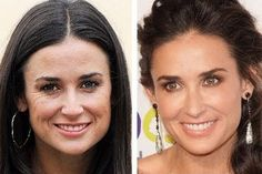 Demi Moore plastic surgery nosejob rhinoplasty before and after cosmetic surgery