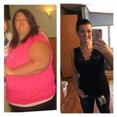 40 Best Gastric Bypass Rny Images Weight Loss Surgery Weight