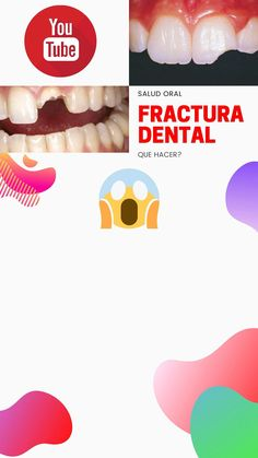 QUE HACER SI SE FRACTURA UN DIENTE Bogotá-Colombia  Videos: @millonesdehojas Accesorios: @mexicolindo.com.co  #Fractura #Traumadental # #Dienteroto #Implanete #Injerto #c#DentistryChannel #CanalDeOrtodoncia #CanalDeOdontologia #YoutubeChannel #Dentista #Ortodoncista #YoutubeOrtodoncia #Odontologia #Ortodoncia #Youtuber #mychann