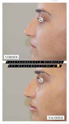 Schöne und natürlich aussehende Nasenkorrektur mit Hyaluronsäure - die Behandlung dauert 5min und hält zwischen 6 und 9 Monate! Diamond Earrings, Jewelry, Nine Months, Natural Looks, Face, Nice Asses, Diamond Studs, Jewellery Making, Jewlery
