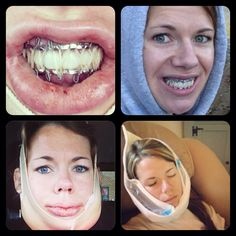 16 Best Double Jaw Surgery Images Double Jaw Surgery Orthognathic