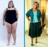 before and after picture of a woman after going through an easy weight loss program